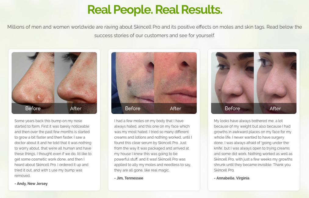 Tiene más preguntas sobre crema antiarrugas bellavei?
